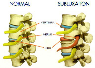 Turnersville Chiropractor | Turnersville chiropractic What is a Subluxation? |  NJ |